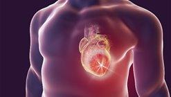 """""""นพ.อนุตตร"""" ชี้ ฉีดวัคซีนเด็กได้ประโยชน์สูงกว่าเกิดหัวใจอักเสบ"""